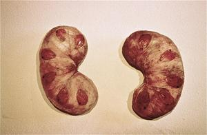 Kidney for Chad