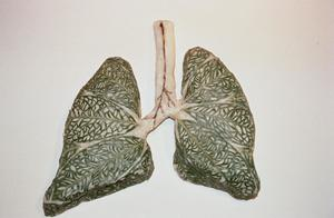 Lungs for Karl II